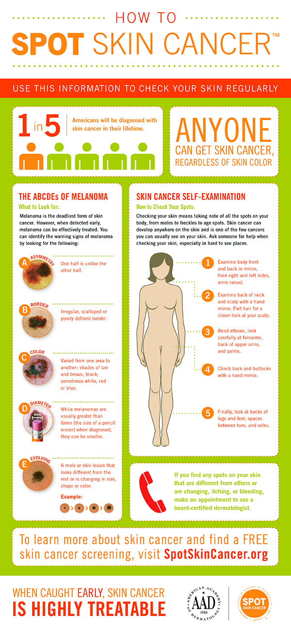 How_to_SPOT_Skin_Cancer_Infographic